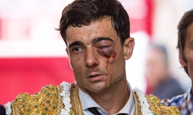 """""""Es muy difícil que Ureña recupere la visión del ojo izquierdo"""""""